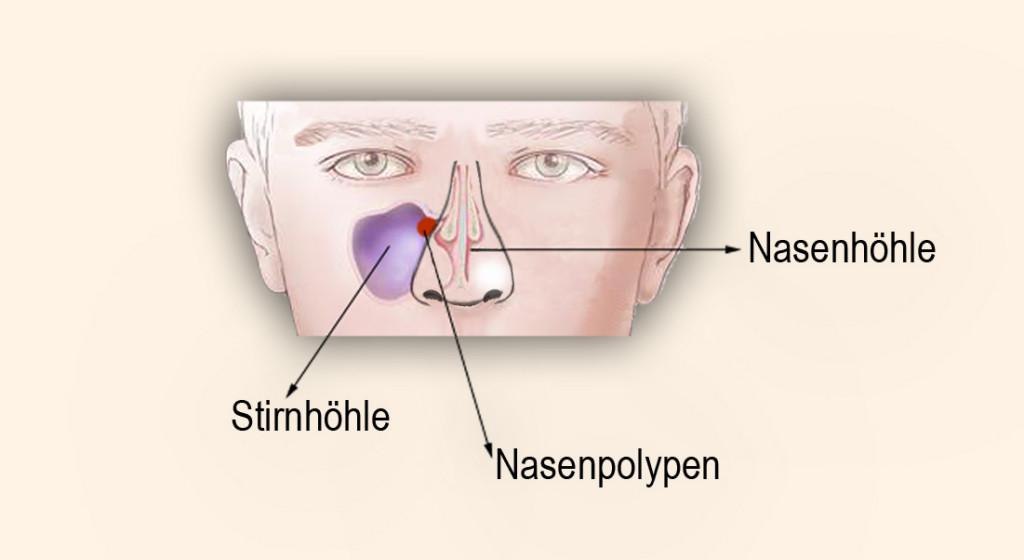 Im Fall von Nasenpolypen - Gegenverstopftenase.de